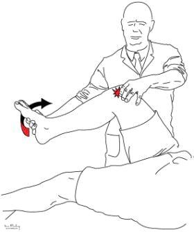 McMurrays test performed holding the knee to achieve full flexion and by applying rotational movements by grasping the heel