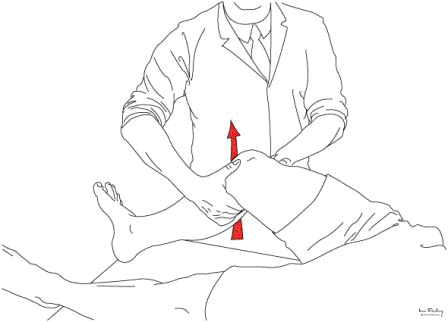 . Lachman's test: the thumb and fingers of each hand, placed as near to the mid line as possible, grip the leg in order to achieve direct anterior and posterior movement. A difference between the two sides in terms of endpoint or excursion is all that is required to indicate ACL injury.