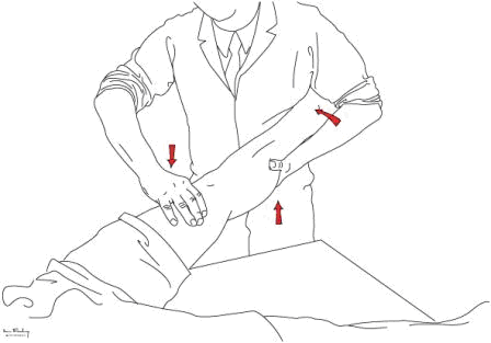 . Pivot shift test - see text for description: ideally the arms need to be shown in such a way that the examiners left hand goes under the shin of the patient and interlocks on the right wrist and forearm