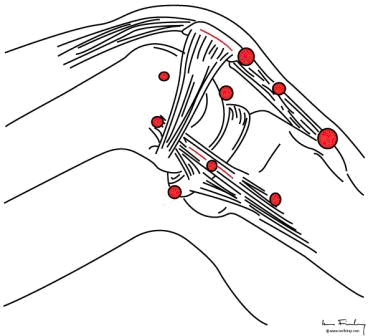 Palpation of the knee at 90 degrees for trigger points around the patella