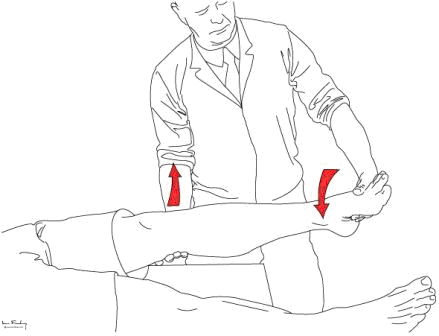 Assessment of the collateral ligaments, achieved by cupping the knee and then applying medial and lateral movements of the leg by grasping the heel. The fingers and the palm are used as a fulcrum.